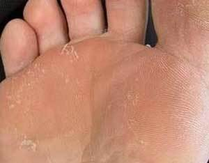 effective remedy for foot fungus