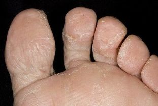 Fungus on the foot