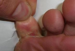 fungus between toes treatment ointment