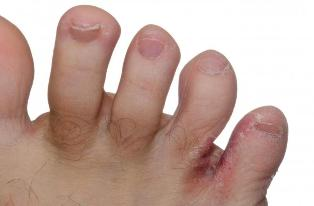 fungus between toes treatment