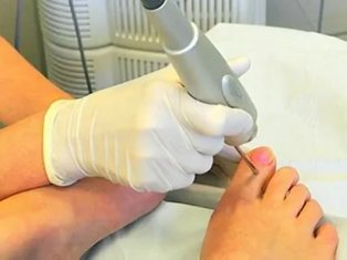 treatment-nail
